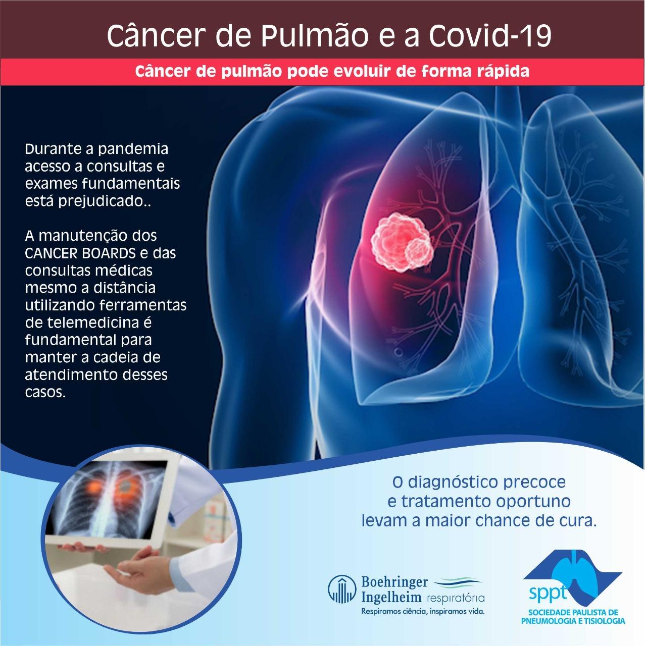 Câncer de Pulmão e a Covid-19